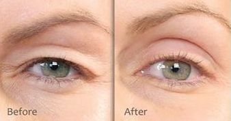 Eyelid Lift - before and after